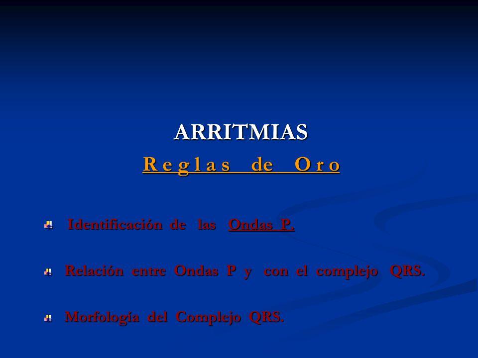 ARRITMIAS R e g l a s de O r o Identificación de las Ondas P. Identificación de las Ondas P. Relación entre Ondas P y con el complejo QRS. Relación en