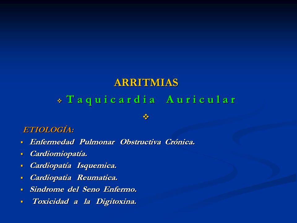 ARRITMIAS T a q u i c a r d i a A u r i c u l a r T a q u i c a r d i a A u r i c u l a r ETIOLOGÍA: ETIOLOGÍA: Enfermedad Pulmonar Obstructiva Crónic