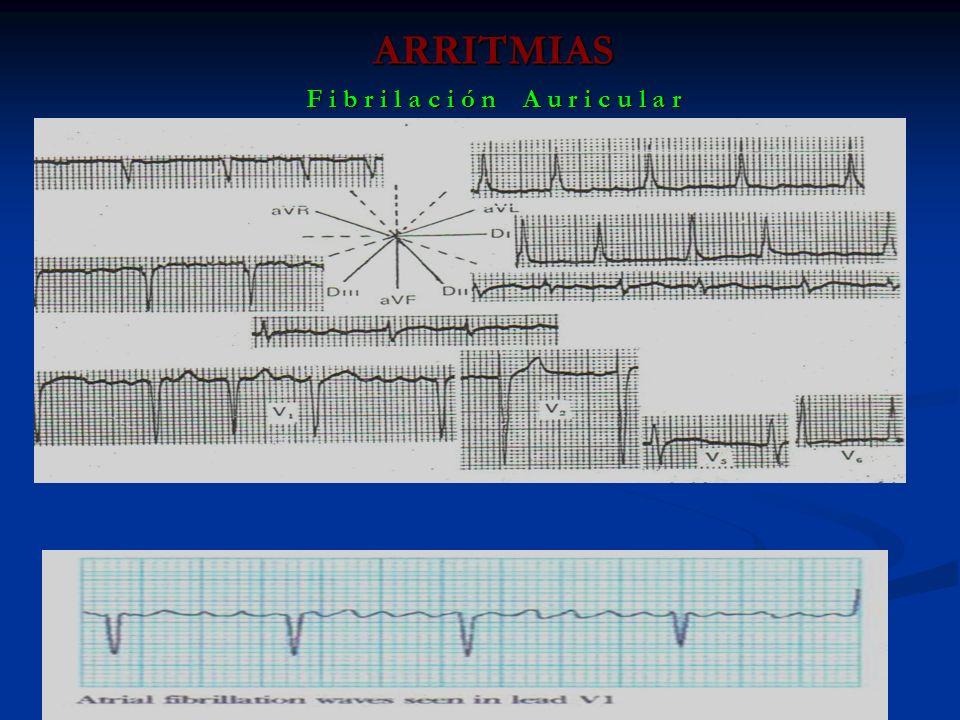 ARRITMIAS F i b r i l a c i ó n A u r i c u l a r