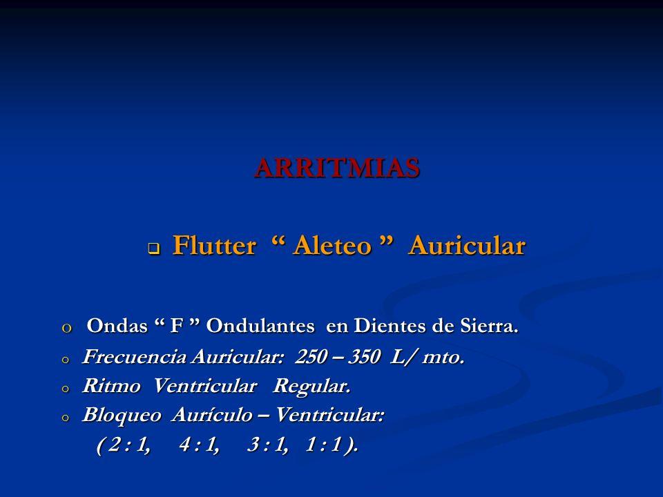 ARRITMIAS Flutter Aleteo Auricular Flutter Aleteo Auricular o Ondas F Ondulantes en Dientes de Sierra. o Frecuencia Auricular: 250 – 350 L/ mto. o Rit