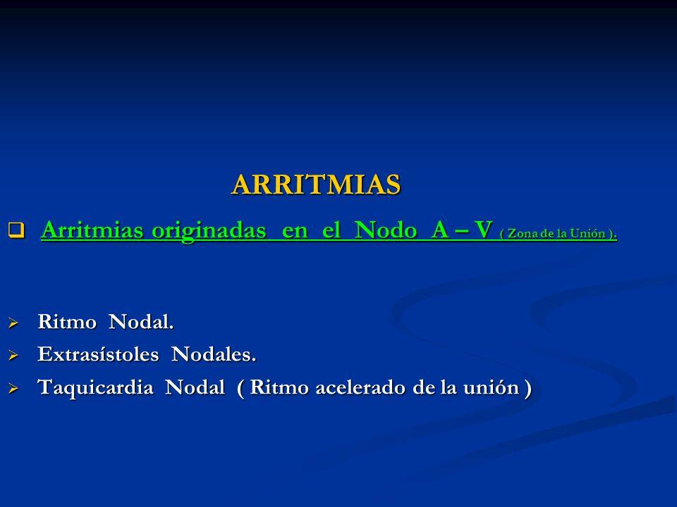 ARRITMIAS Arritmias originadas en el Nodo A – V ( Zona de la Unión ). Arritmias originadas en el Nodo A – V ( Zona de la Unión ). Ritmo Nodal. Ritmo N