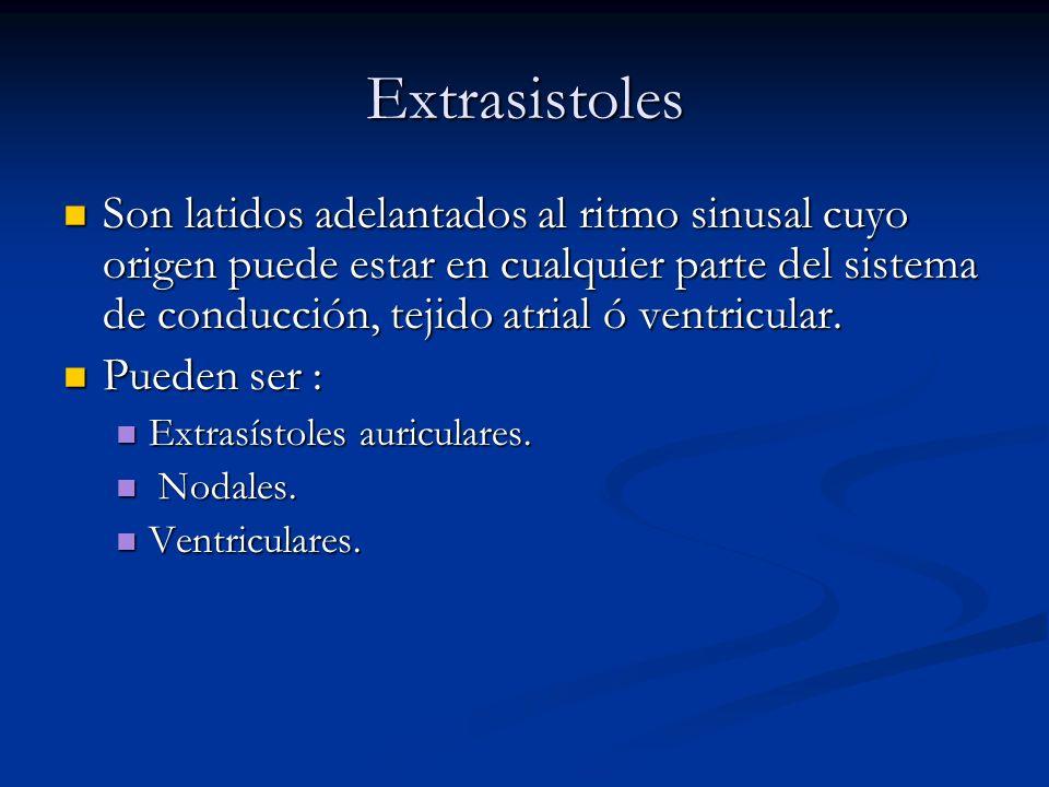 Extrasistoles Son latidos adelantados al ritmo sinusal cuyo origen puede estar en cualquier parte del sistema de conducción, tejido atrial ó ventricul