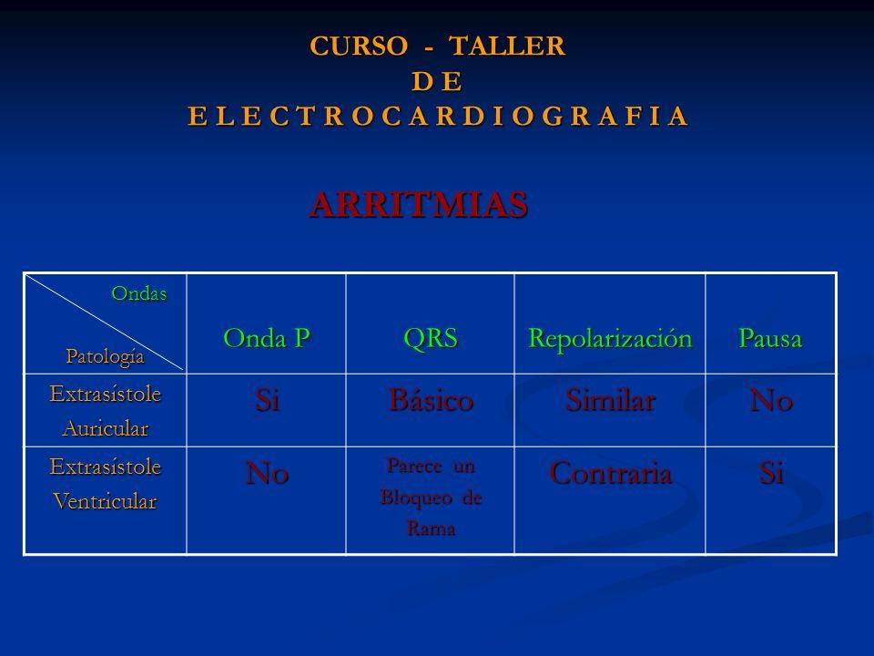 CURSO - TALLER D E E L E C T R O C A R D I O G R A F I A ARRITMIAS Ondas OndasPatología Onda P QRSRepolarizaciónPausa ExtrasístoleAuricularSiBásicoSim