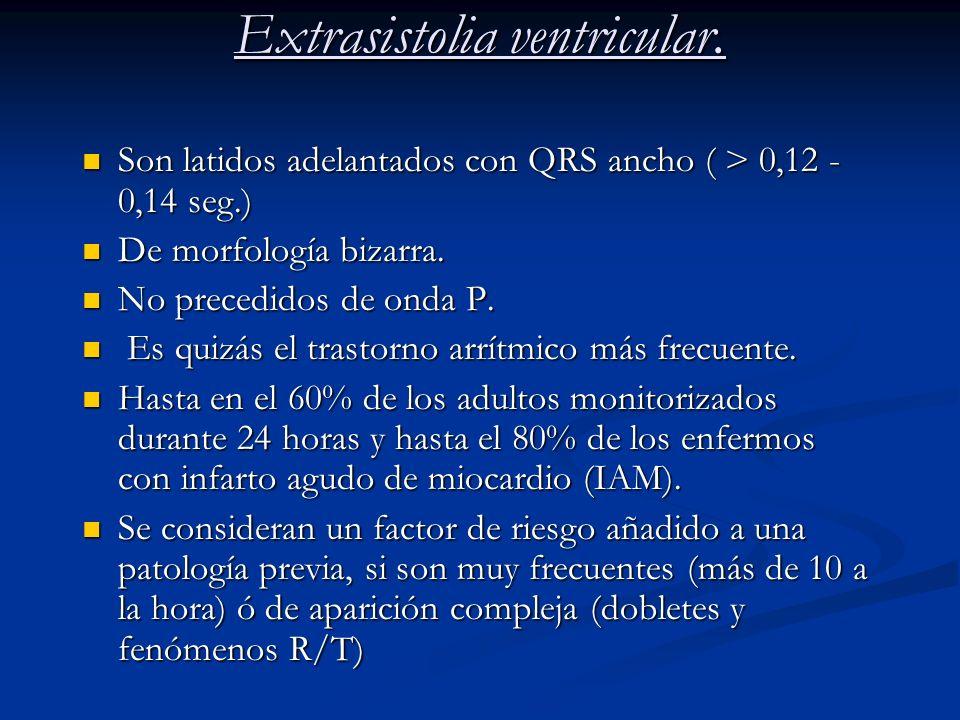 Extrasistolia ventricular. Son latidos adelantados con QRS ancho ( > 0,12 - 0,14 seg.) Son latidos adelantados con QRS ancho ( > 0,12 - 0,14 seg.) De