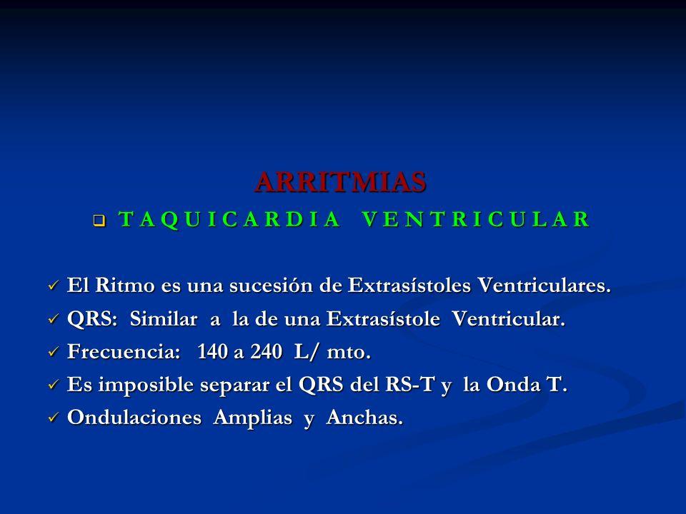 ARRITMIAS T A Q U I C A R D I A V E N T R I C U L A R T A Q U I C A R D I A V E N T R I C U L A R El Ritmo es una sucesión de Extrasístoles Ventricula