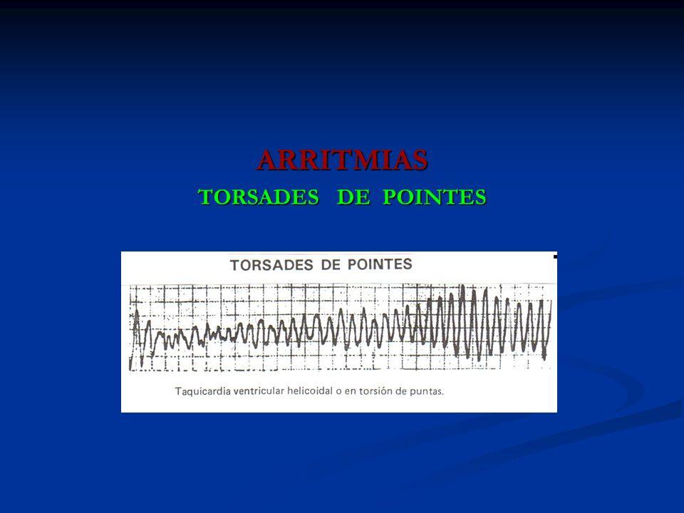 ARRITMIAS TORSADES DE POINTES