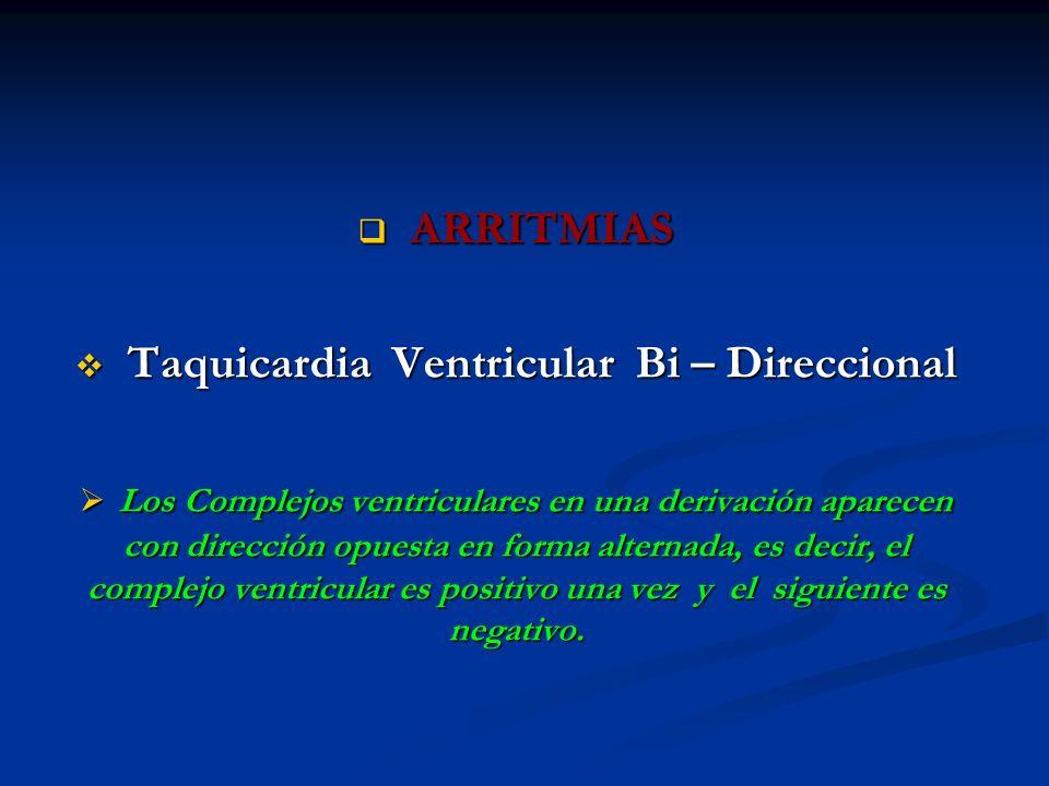 ARRITMIAS ARRITMIAS Taquicardia Ventricular Bi – Direccional Taquicardia Ventricular Bi – Direccional Los Complejos ventriculares en una derivación ap