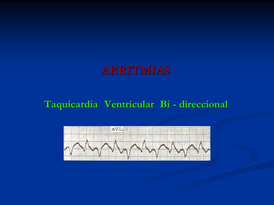 ARRITMIAS Taquicardia Ventricular Bi - direccional