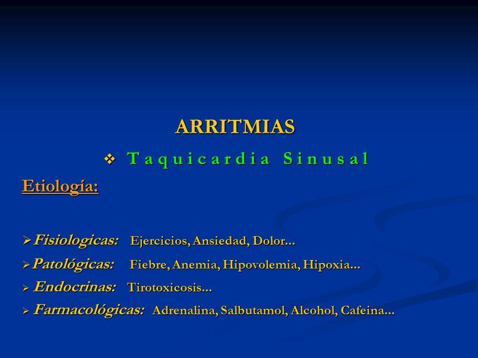 ARRITMIAS T a q u i c a r d i a S i n u s a l T a q u i c a r d i a S i n u s a lEtiología: Fisiologicas: Ejercicios, Ansiedad, Dolor... Fisiologicas: