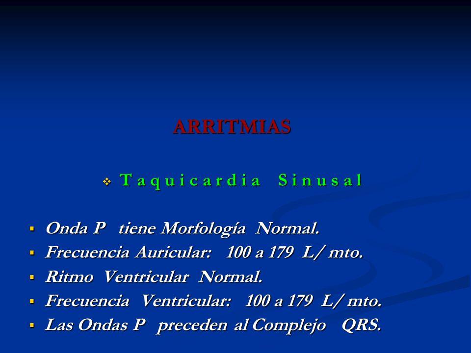 ARRITMIAS T a q u i c a r d i a S i n u s a l T a q u i c a r d i a S i n u s a l Onda P tiene Morfología Normal. Onda P tiene Morfología Normal. Frec