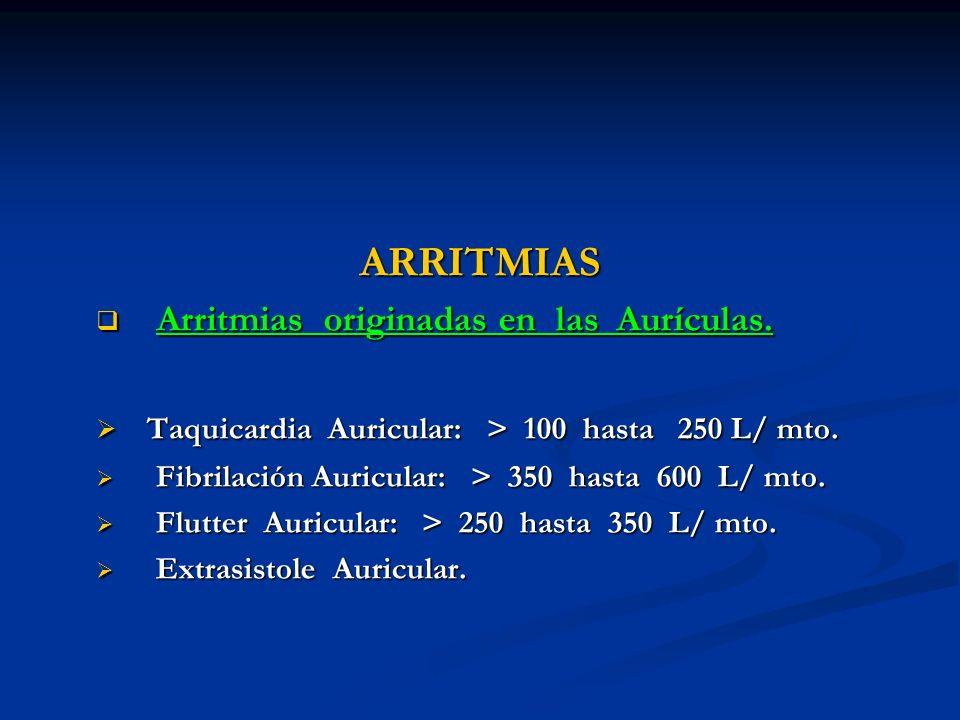 ARRITMIAS Arritmias originadas en las Aurículas. Arritmias originadas en las Aurículas. Taquicardia Auricular: > 100 hasta 250 L/ mto. Taquicardia Aur