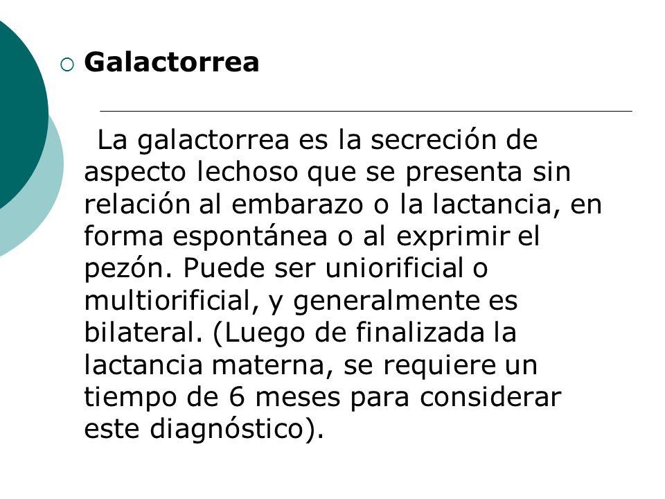 Galactorrea La galactorrea es la secreción de aspecto lechoso que se presenta sin relación al embarazo o la lactancia, en forma espontánea o al exprim