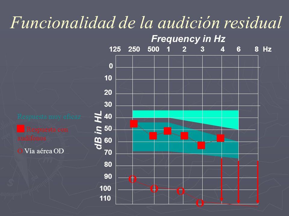 0 10 20 30 40 50 60 70 80 90 110 250125500 1 2 3 4 6 8 Hz 100 Frequency in Hz dB in HL Funcionalidad de la audición residual Respuesta muy eficaz Resp