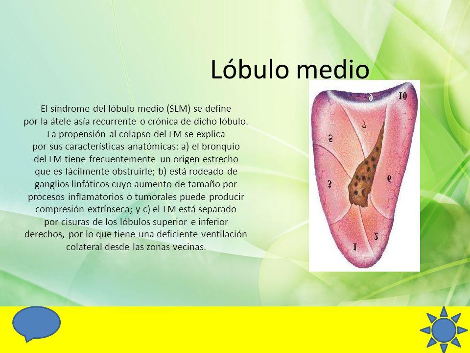 Lóbulo medio El síndrome del lóbulo medio (SLM) se define por la átele asía recurrente o crónica de dicho lóbulo. La propensión al colapso del LM se e