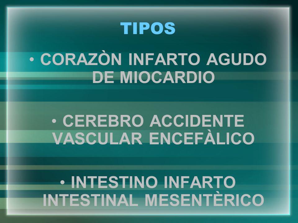 TIPOS CORAZÒN INFARTO AGUDO DE MIOCARDIO CEREBRO ACCIDENTE VASCULAR ENCEFÀLICO INTESTINO INFARTO INTESTINAL MESENTÈRICO