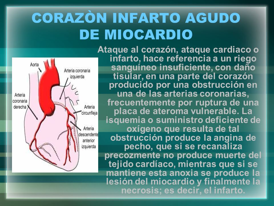 CORAZÒN INFARTO AGUDO DE MIOCARDIO Ataque al corazón, ataque cardiaco o infarto, hace referencia a un riego sanguíneo insuficiente, con daño tisular,