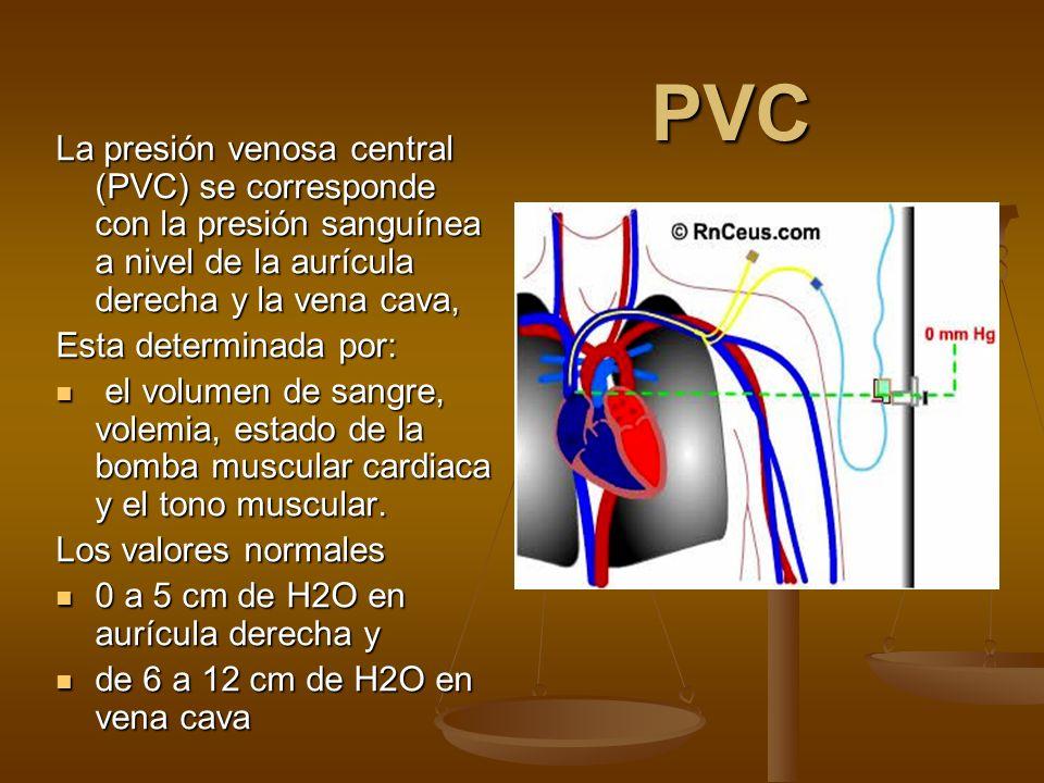 PVC La presión venosa central (PVC) se corresponde con la presión sanguínea a nivel de la aurícula derecha y la vena cava, Esta determinada por: el vo