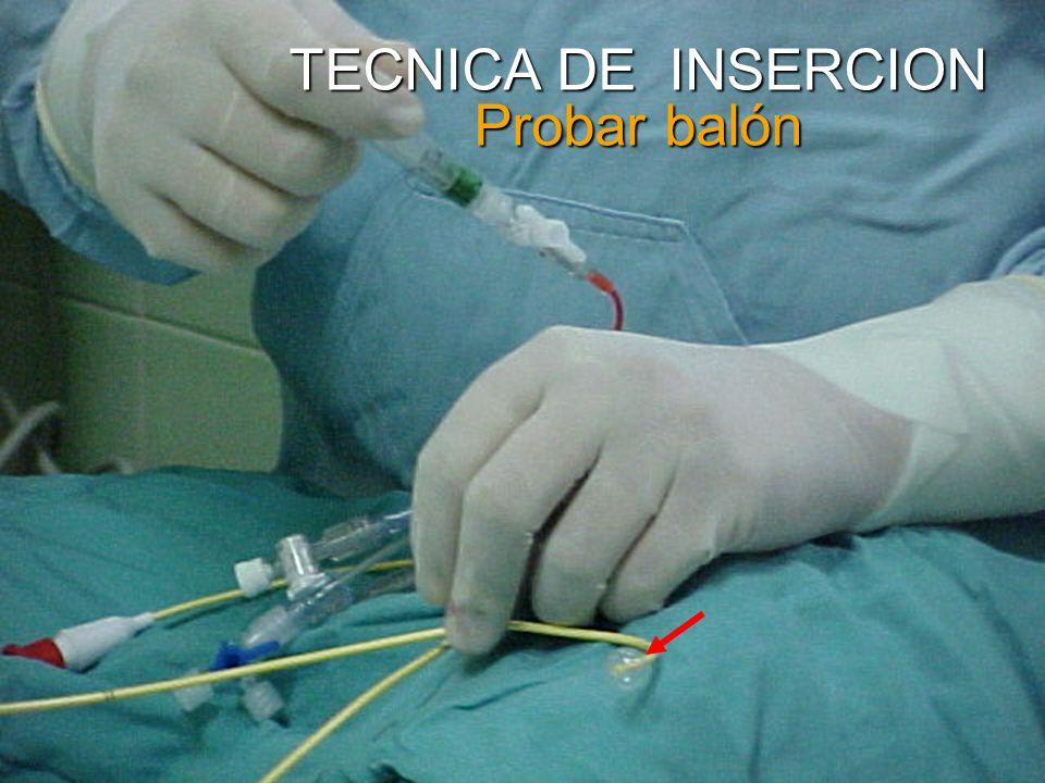 TECNICA DE INSERCION Probar balón