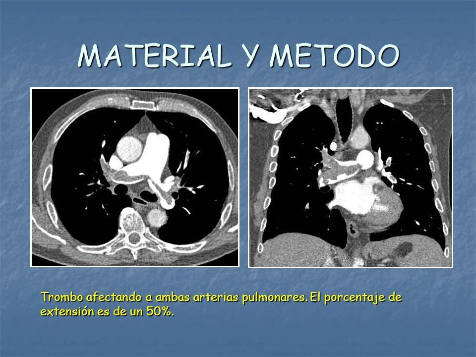 MATERIAL Y METODO Trombo afectando a ambas arterias pulmonares. El porcentaje de extensión es de un 50%.