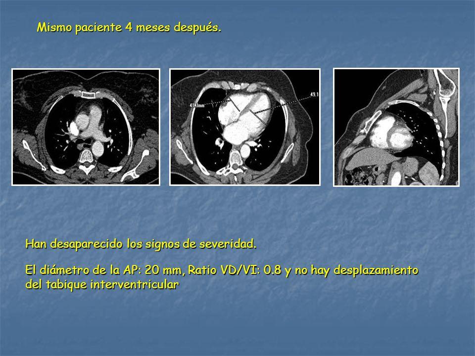 Mismo paciente 4 meses después. Han desaparecido los signos de severidad. El diámetro de la AP: 20 mm, Ratio VD/VI: 0.8 y no hay desplazamiento del ta