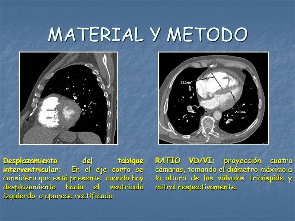 MATERIAL Y METODO RATIO VD/VI: proyección cuatro cámaras, tomando el diámetro máximo a la altura de las válvulas tricúspide y mitral respectivamente.
