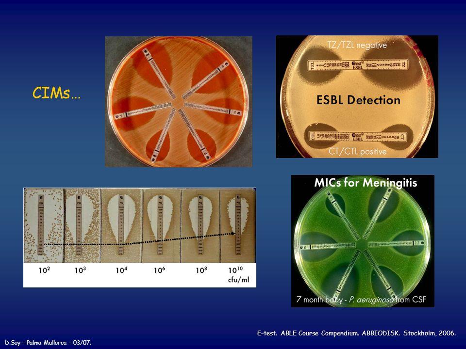 CIMs… E-test. ABLE Course Compendium. ABBIODISK. Stockholm, 2006. D.Soy – Palma Mallorca – 03/07.