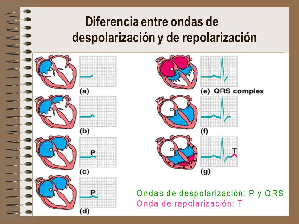 Diferencia entre ondas de despolarización y de repolarización