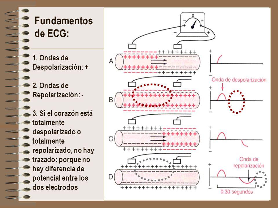 Fundamentos de ECG: 1. Ondas de Despolarización: + 2. Ondas de Repolarización: - 3. Si el corazón está totalmente despolarizado o totalmente repolariz