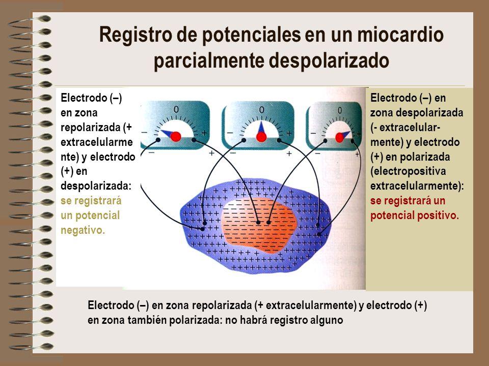 Electrodo (–) en zona repolarizada (+ extracelularmente) y electrodo (+) en zona también polarizada: no habrá registro alguno Electrodo (–) en zona de