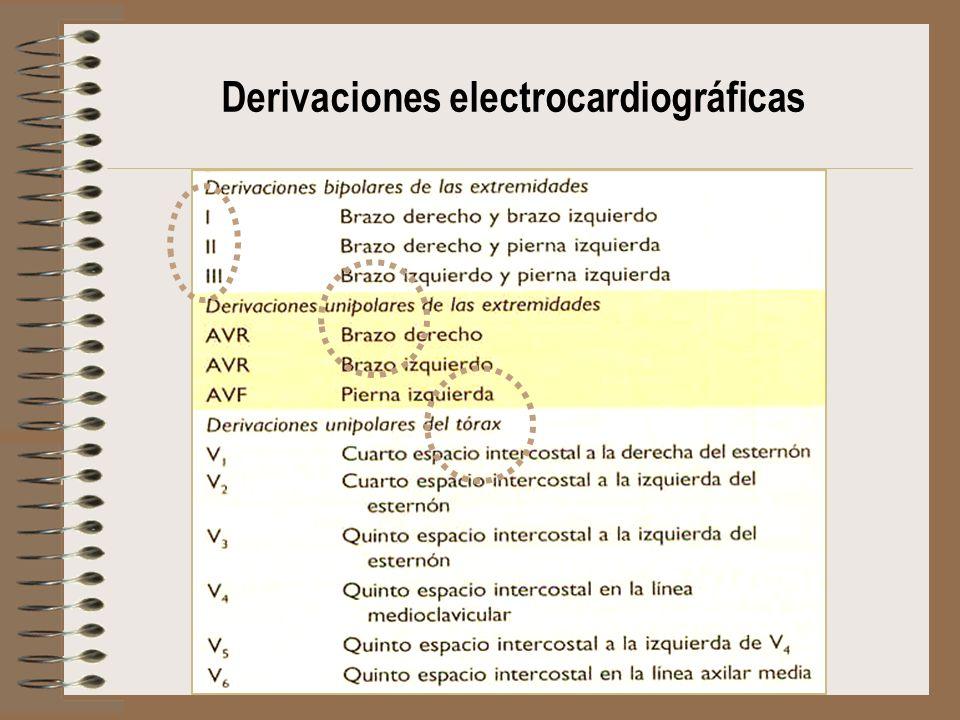 Derivaciones electrocardiográficas