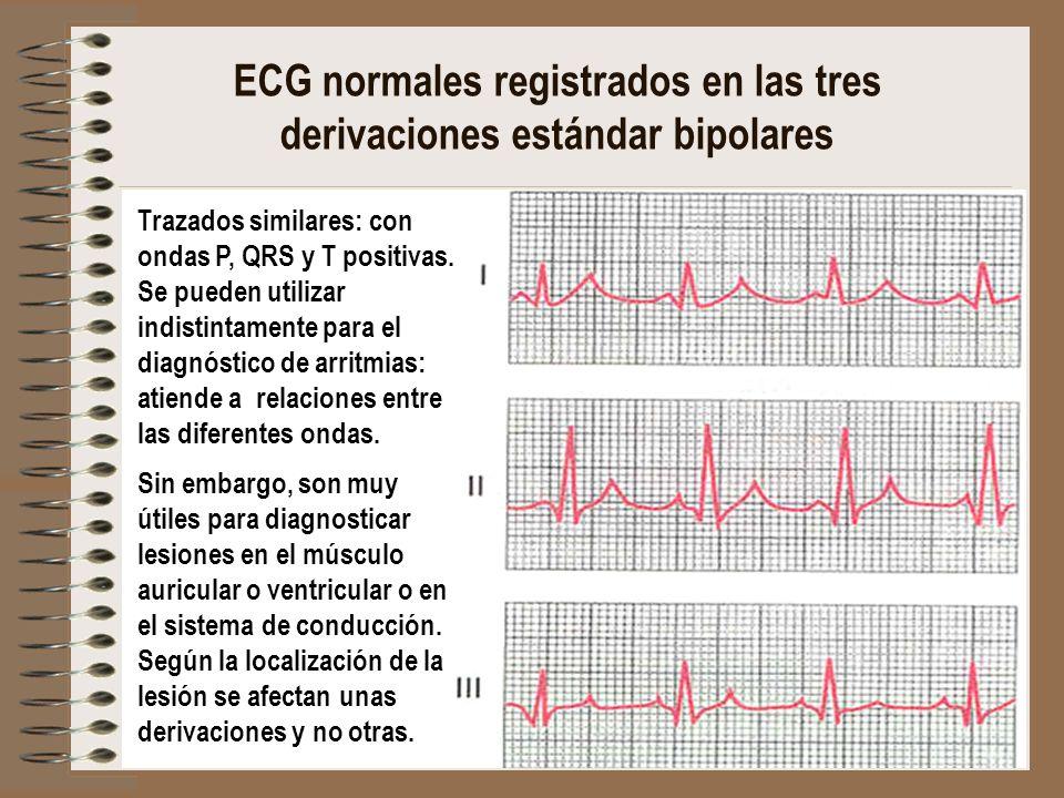 ECG normales registrados en las tres derivaciones estándar bipolares Trazados similares: con ondas P, QRS y T positivas. Se pueden utilizar indistinta