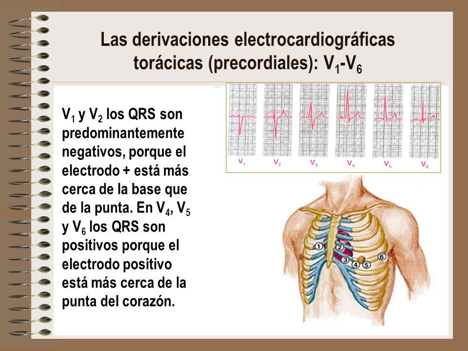Las derivaciones electrocardiográficas torácicas (precordiales): V 1 -V 6 V 1 y V 2 los QRS son predominantemente negativos, porque el electrodo + est