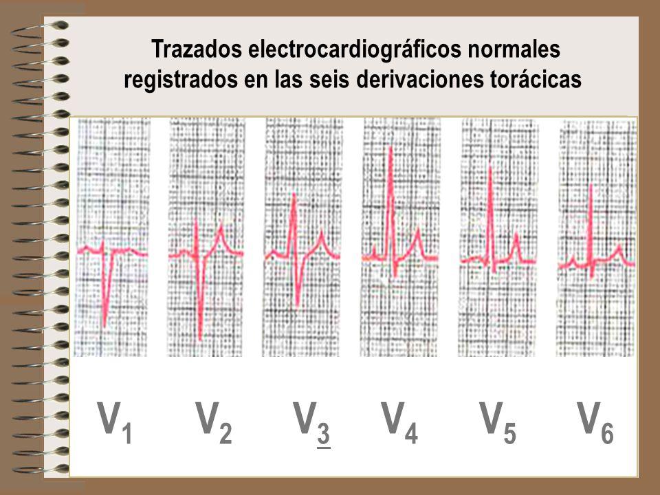 Trazados electrocardiográficos normales registrados en las seis derivaciones torácicas V 1 V 2 V 3 V 4 V 5 V 6