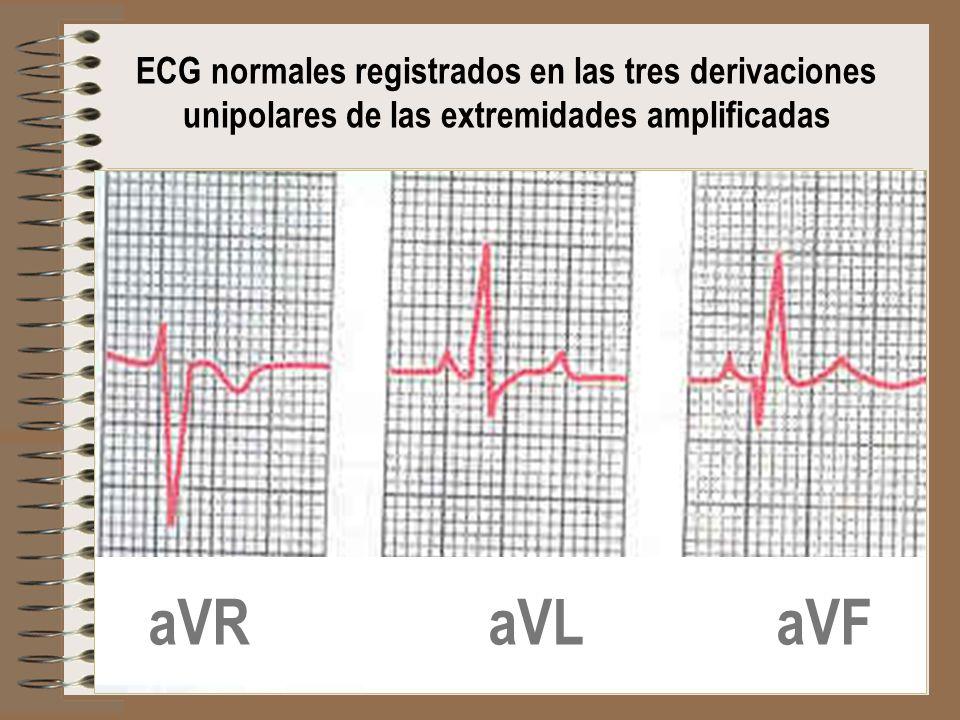 ECG normales registrados en las tres derivaciones unipolares de las extremidades amplificadas aVR aVL aVF