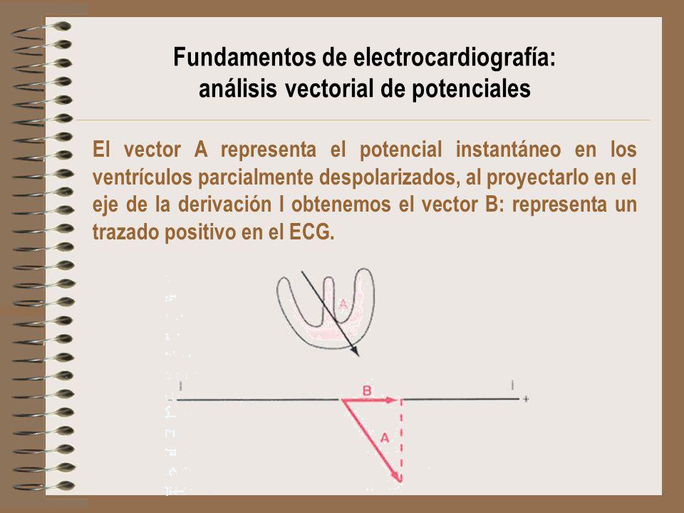 El vector A representa el potencial instantáneo en los ventrículos parcialmente despolarizados, al proyectarlo en el eje de la derivación I obtenemos