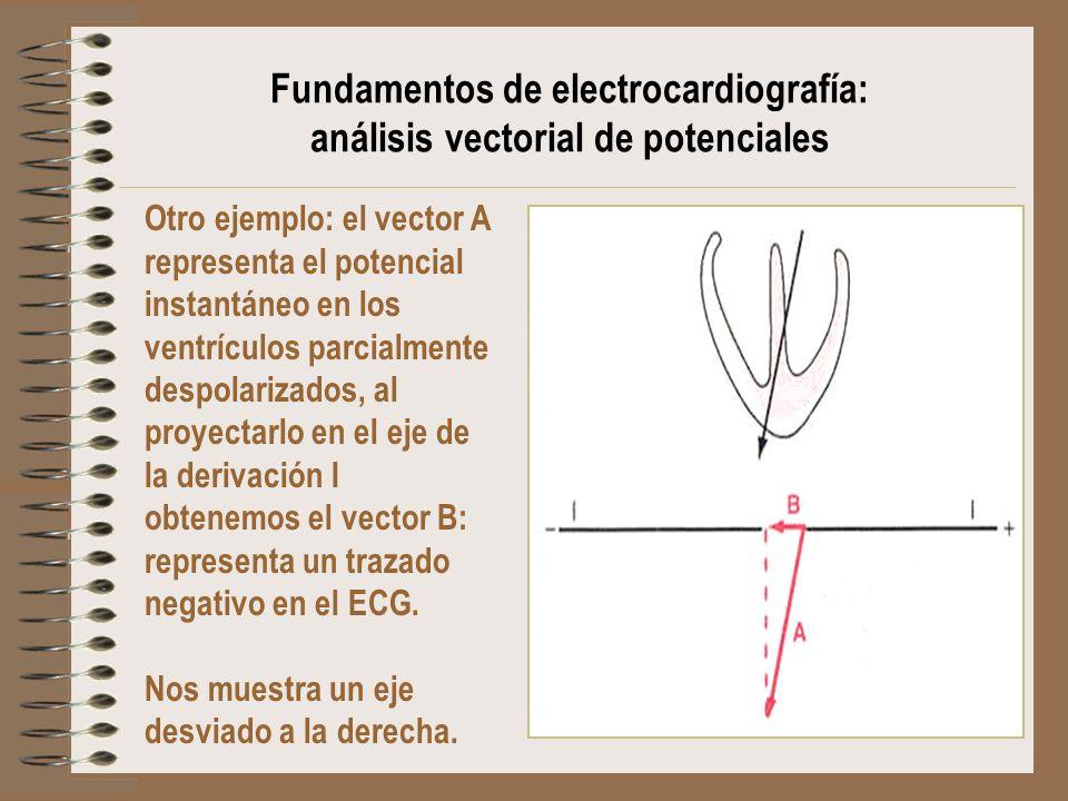 Otro ejemplo: el vector A representa el potencial instantáneo en los ventrículos parcialmente despolarizados, al proyectarlo en el eje de la derivació