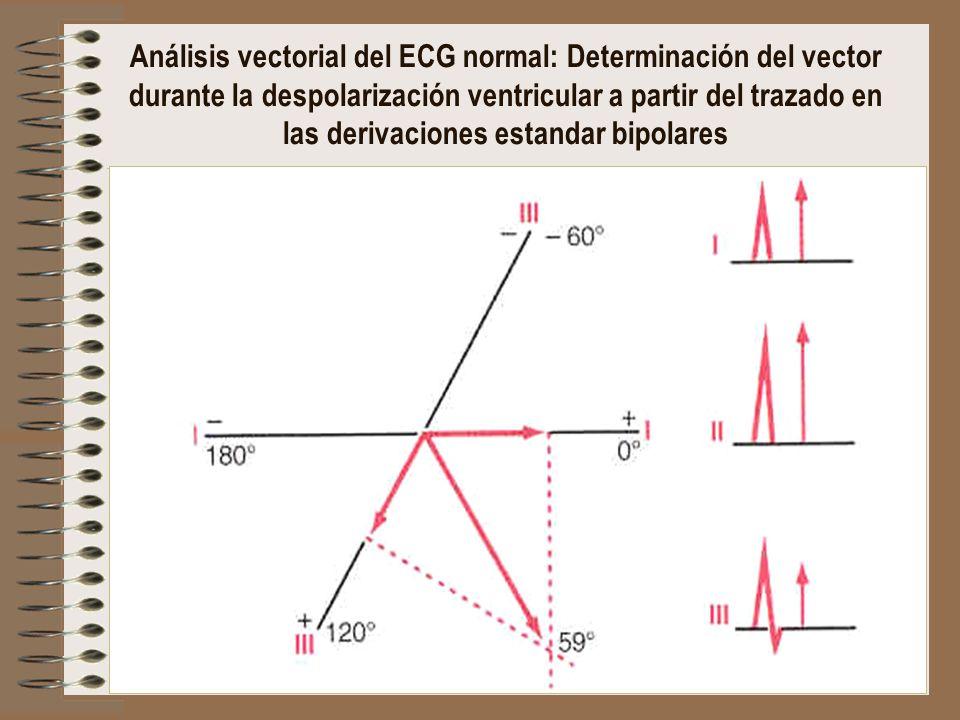 Análisis vectorial del ECG normal: Determinación del vector durante la despolarización ventricular a partir del trazado en las derivaciones estandar b