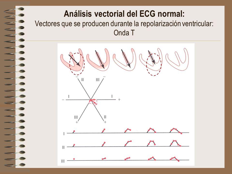Análisis vectorial del ECG normal: Vectores que se producen durante la repolarización ventricular: Onda T