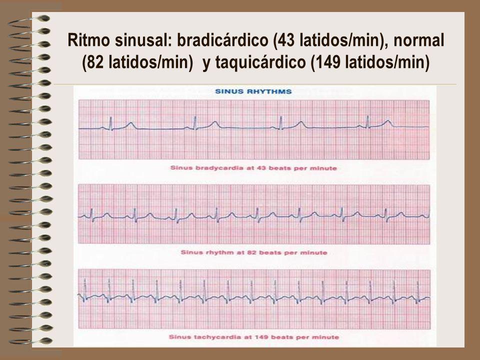 Ritmo sinusal: bradicárdico (43 latidos/min), normal (82 latidos/min) y taquicárdico (149 latidos/min)