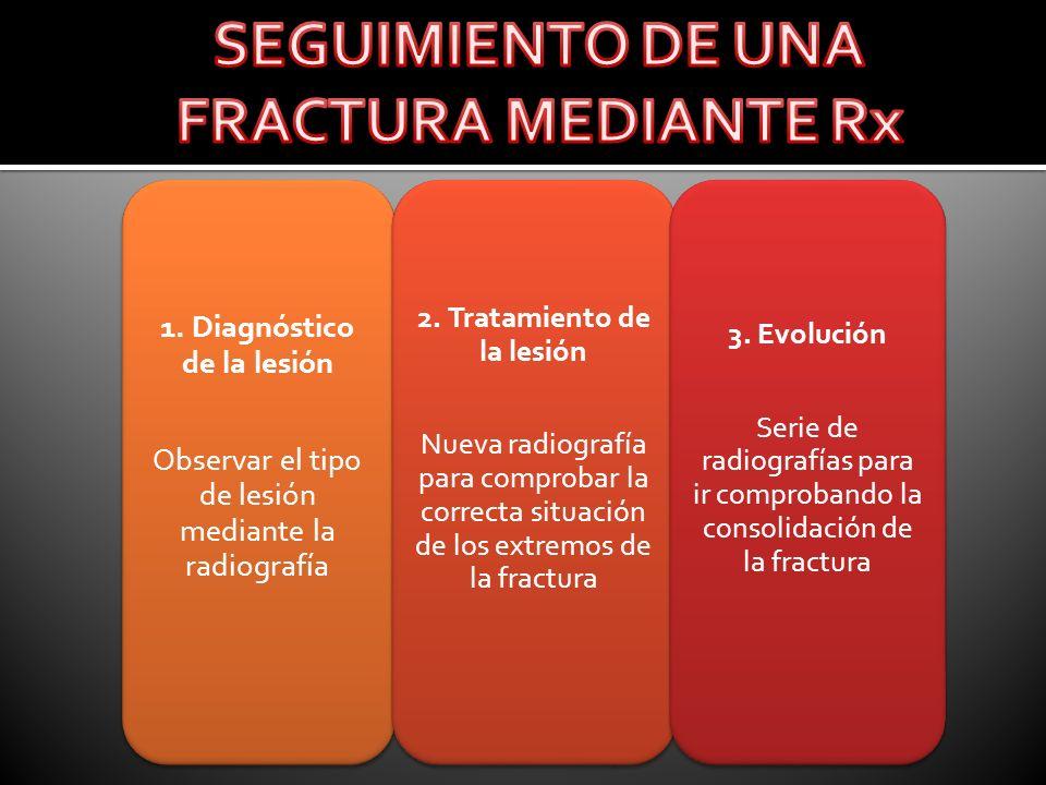 1. Diagnóstico de la lesión Observar el tipo de lesión mediante la radiografía 2. Tratamiento de la lesión Nueva radiografía para comprobar la correct