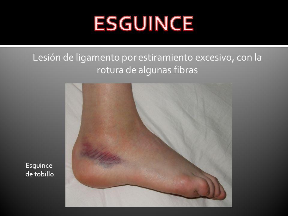 Lesión de ligamento por estiramiento excesivo, con la rotura de algunas fibras Esguince de tobillo