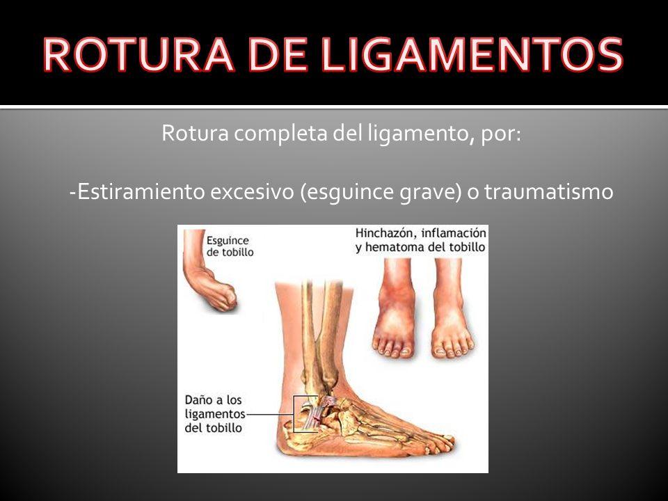 Rotura completa del ligamento, por: -Estiramiento excesivo (esguince grave) o traumatismo