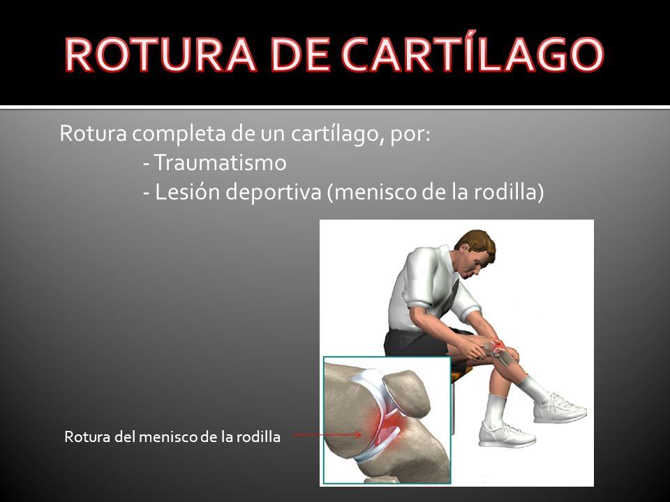 Rotura completa de un cartílago, por: - Traumatismo - Lesión deportiva (menisco de la rodilla) Rotura del menisco de la rodilla