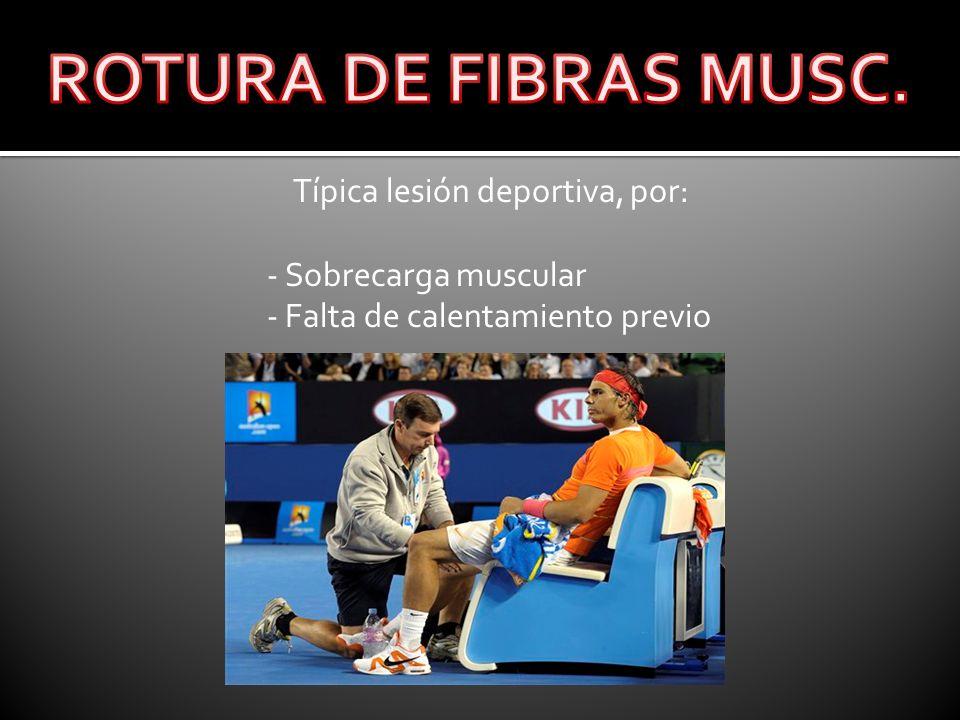 Típica lesión deportiva, por: - Sobrecarga muscular - Falta de calentamiento previo