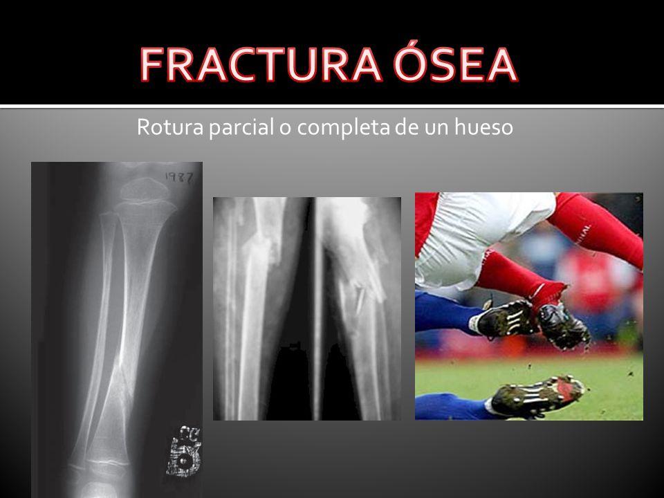 Rotura parcial o completa de un hueso