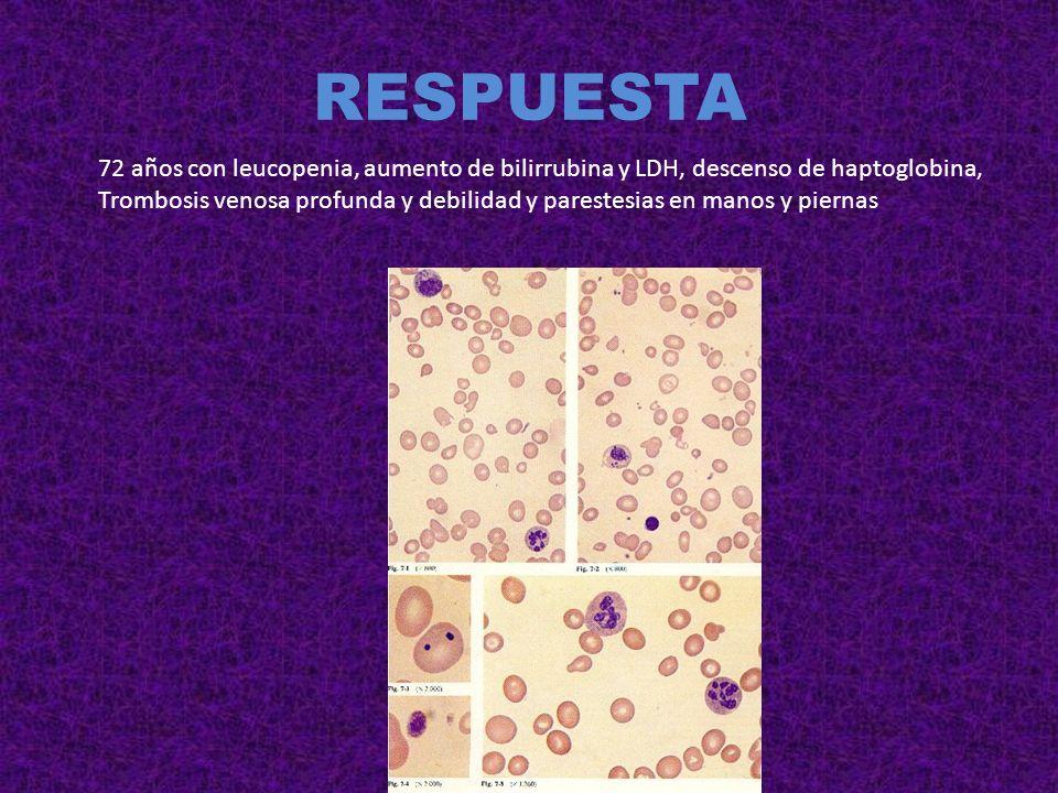 RESPUESTA Embarazada en tratamiento con alfa metil dopa por HTA.