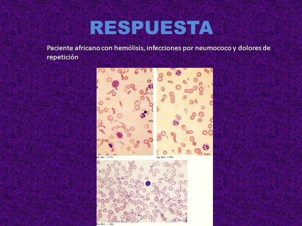 RESPUESTA Paciente con anemia y tuberculosis osteoarticular PALUDISMO