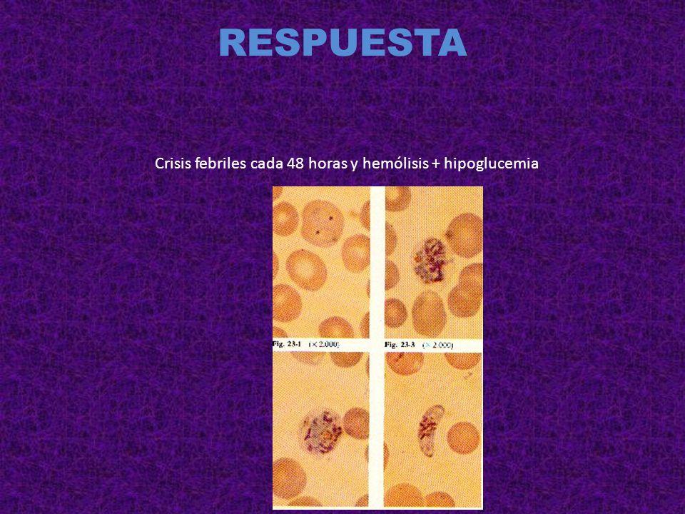 RESPUESTA Picado por garrapata con hemólisis, fiebre y esplenomegalia.
