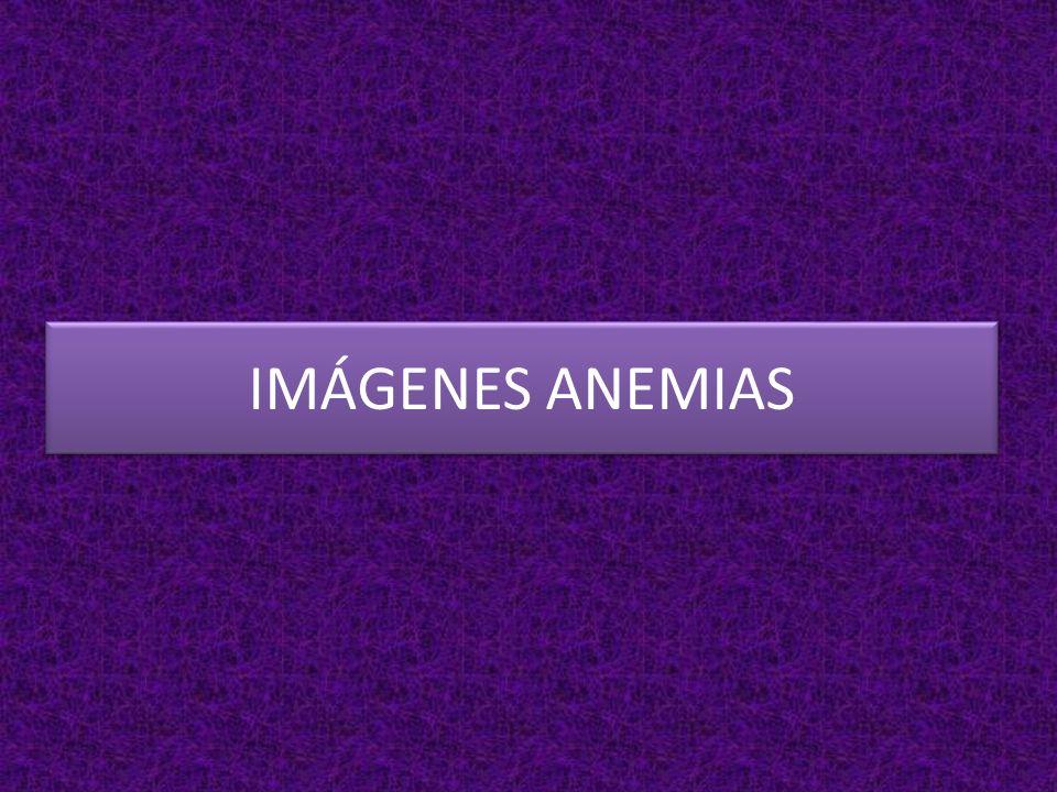 ANEMIA MIELOTÍSICA Paciente con anemia y tuberculosis osteoarticular PALUDISMO