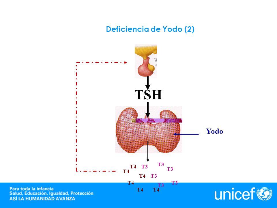 Deficiència de Yodo (3) T3T4 T3 T4 T3 TSH Yodo